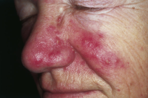 rosacea on nose